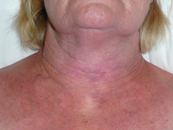 Sudden prominent neck veins on celebrity